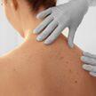 Распознать как можно скорее: первые признаки рака кожи