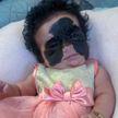 Бабочка или Бэтмен: девочка с самым необычным родимым пятном родилась в США