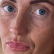 Женщина использовала просроченный крем-автозагар. Посмотрите, что с ней стало