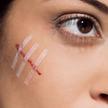 Учёные создали гель, заживляющий раны без шрамов