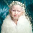 Якутская «Белоснежка»: девочка-альбинос покорила Интернет необычной внешностью