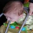 В Мозыре голова семимесячного ребенка застряла между прутьями спинки стула