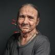 Искусственный язык пришили курившему 50 лет мужчине