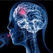 Учёные выяснили как эффект плацебо перестраивает мозг