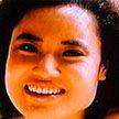 История девушки, которая  изуродовала себя уколами в лицо ради красоты